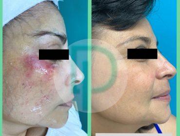 Tratamiento de Rosacea con IPL